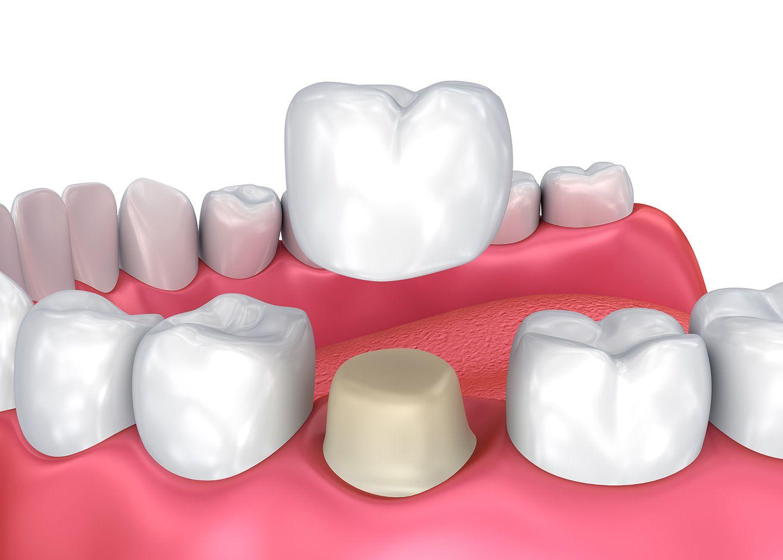 Porcelain Crowns - Orozen Dental Clinics - Dental Crowns