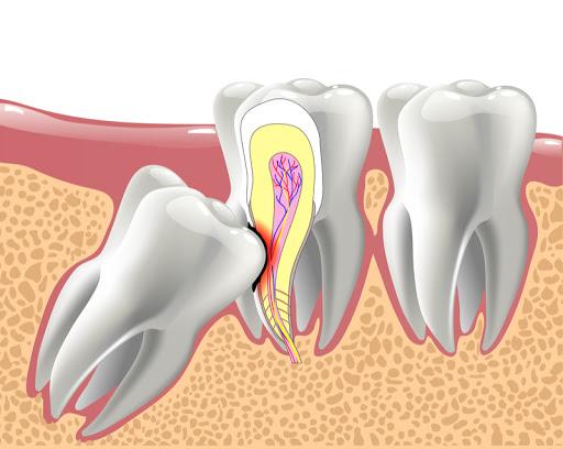 Wisdome Tooth